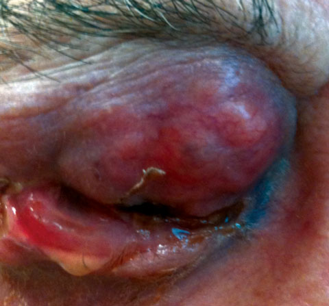 Presented here is an advanced infiltrating eyelid malignancy.