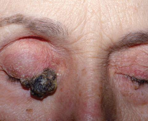 An example of advanced seborrheic keratosis.