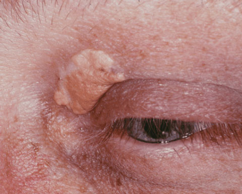 Shown here is an example of an xanthelasma.