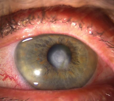 Significant scarring from deep corneal inflammation, which is one of the most common causes of vision loss in HSVK. Photo: Lisa Martén, MD