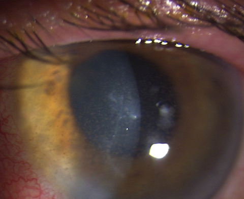 Keratic precipitates with anterior chamber reaction and stromal haze, which are hallmarks of HSV endothelial keratitis. Photo: Lisa Martén, MD