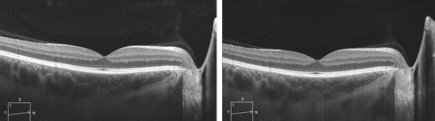 SD-OCT line scan with (at left) and without enhanced depth imaging, which allows for  visualization of the choroidal layers and the choroid-scleral interface.