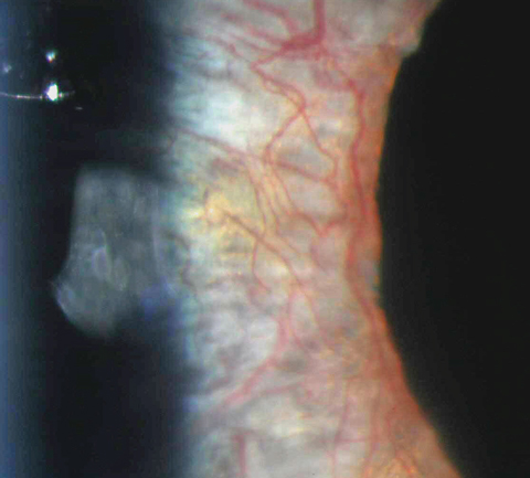 Marked neovascularization of the iris in this patient was caused by uncontrolled proliferative diabetic retinopathy. Photo: Aaron Bronner, OD