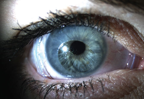 Virtually any corneal or conjunctival surface disease that involves inflammation may benefit from the use of an amniotic membrane.