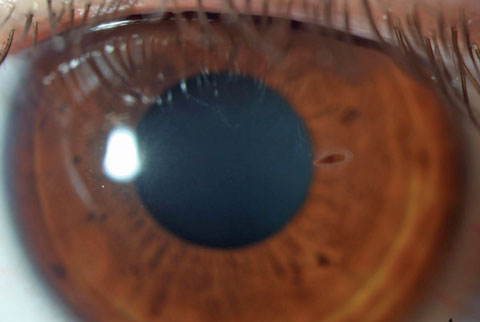 Plant seed corneal foreign body carries increased risk of microbial fungal keratitis.