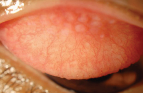 Fig. 2. Contact lens-related papillary conjunctivitis while wearing silicone hydrogel. Photo: Christina Newman, OD