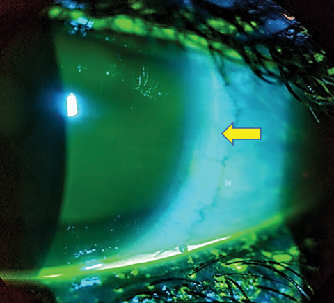 Fig. 5. Partial arcuate indentation of the nasal bulbar conjunctiva related to edge profile (yellow arrow).