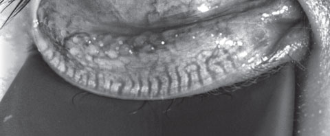 Fig. 3. This patient's meibography shows a patient with first-degree gland atrophy indicating less than 25% gland loss via the Pult scale.