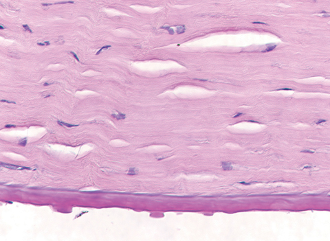 Fig. 3. This specimen, removed following corneal transplantation, shows the histopathology of corneal guttae. Note the Descemet's membrane thickening, also a hallmark of FED.