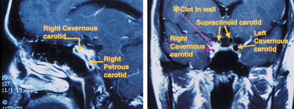 This 36-year-old patient was complaining of constant periorbital headaches on the right side, accompanied by ptosis and miotic pupil. Four weeks earlier, she developed a temporal scintillating scotoma in her right eye that lasted 15 to 30 minutes, followed by an acute, painful headache on the right side. Sagittal MRI (left) shows an internal carotid artery dissection in the wall of the petrous and cavernous sinus segments. Coronal MRI (right) shows significant narrowing of the carotid lumen in the cavernous sinus and supraclinoid segments of the right internal carotid artery. The patient was diagnosed with a post-ganglionic right Horner's syndrome with concurrent headache and scintillating scotomas. Photos: Ellen Marie Petrilla and Gina G. Wong, OD