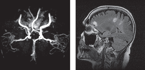 "This patient presented emergently with a complaint of three isolated instances of ""blue-colored shadows"" that transiently and incompletely blocked the vision of the right eye for five minutes at a time. At left, her MRA revealed severe stenosis of the right internal carotid artery (ICA), and she was diagnosed with amaurosis fugax and right hemispheric subacute CVA secondary to severe right ICA stenosis. At right, imaging also showed two restricted diffusion foci located within the right posterior parietal-occipital junction, consistent with a subacute infarct. Photos: Michael Trottini, OD, and Michael DelGiodice, OD"
