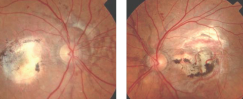 Fig. 1. This patient has angioid streaks that radiate from the optic disc, in addition to macular laser scarring and blot hemes.