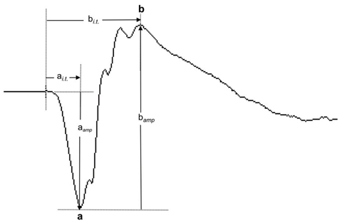 Fig. 1. This normal ffERG dark-adapted 3.0 response shows the a-wave and b-wave components and the measurement of their response amplitudes (aamp and bamp) and implicit times (ai.t. and bi.t.).
