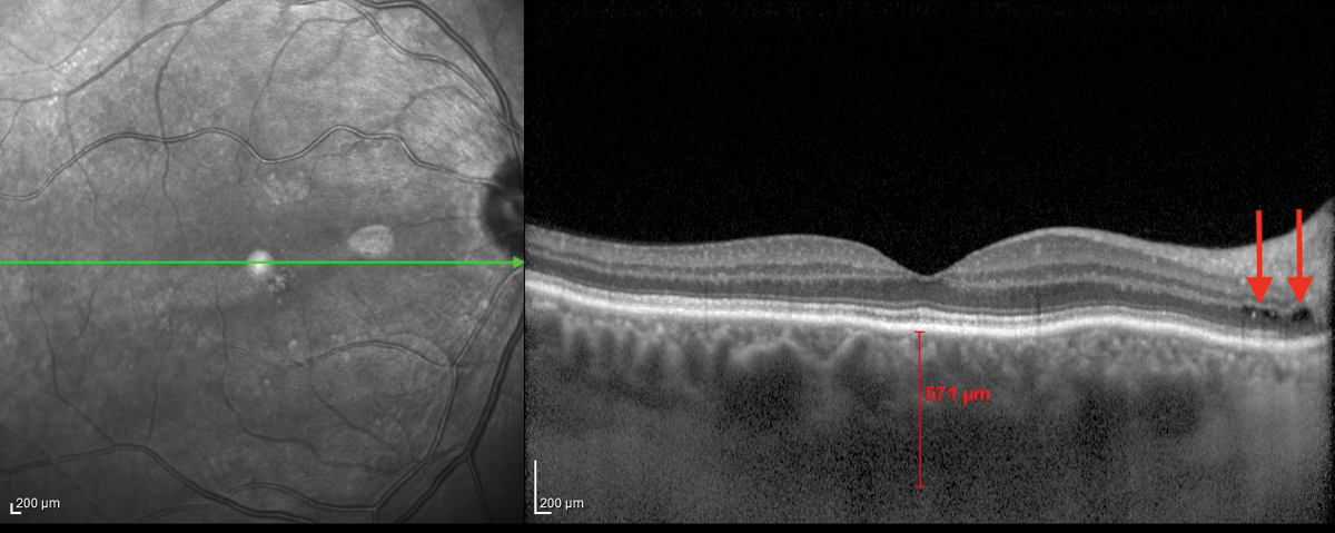 Fig. 1. This OCT B-scan shows the patient's right eye.