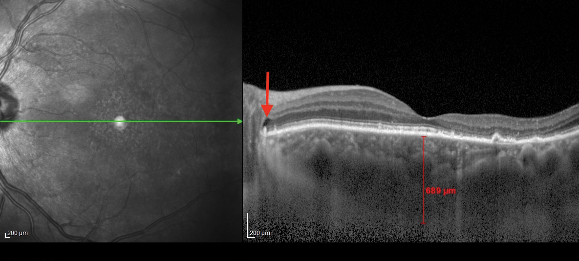 Fig. 2. This OCT B-scan shows the patient's left eye. The posterior subretinal fluid that may have extended from the cystic spaces is noted with red arrows at the optic disc margin.