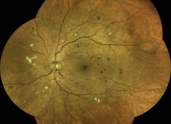 Improving the Identification and Care of Patients With Diabetic Retinopathy