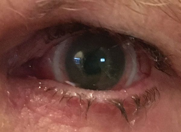 Scleral Lenses Boom, Don't Bust