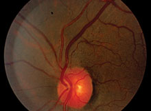 Can You Spot These Retinal Vascular Abnormalities?